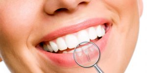 dental implants sunshine
